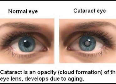 PREVENT AND DELAY CATARACTS NATURALLY: